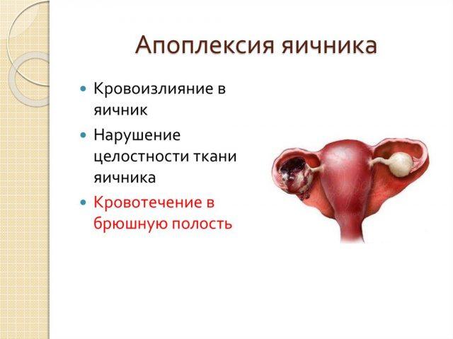 Апоплексия яичника