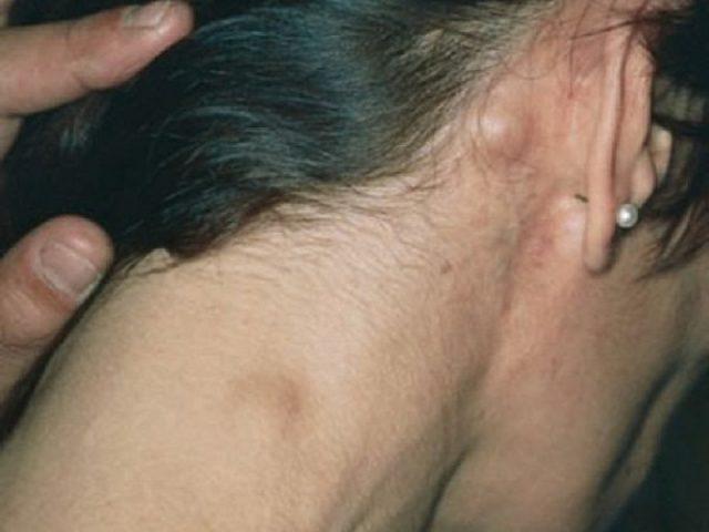Увеличенные затылочные и шейные лимфоузлы