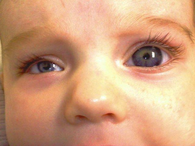 Микрофтальмия у ребёнка