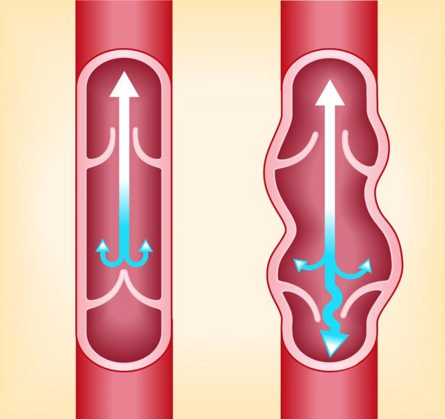 Функционирование вен в норме и при варикозе