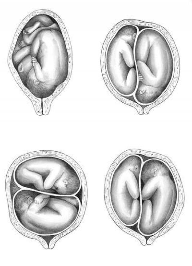 Расположение детей в матке при многоплодной беременности
