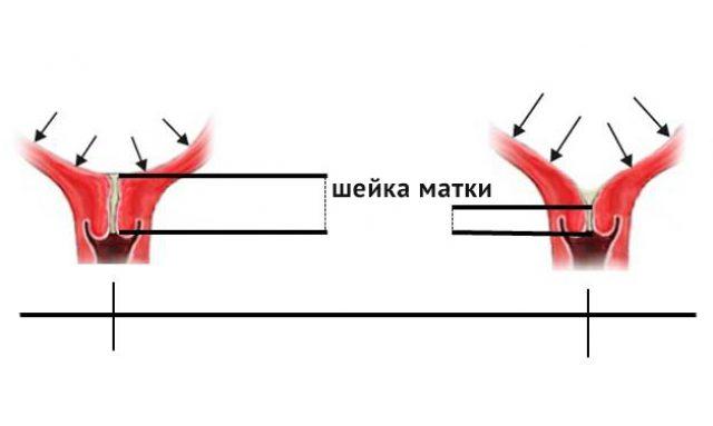Схематичное изображение нормальной и укороченной шейки матки
