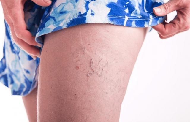 Женская нога с варикозом