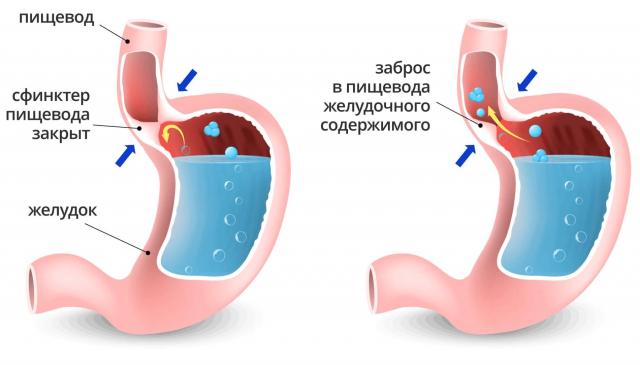 Закрытый и открытый сфинктер между пищеводом и желудком