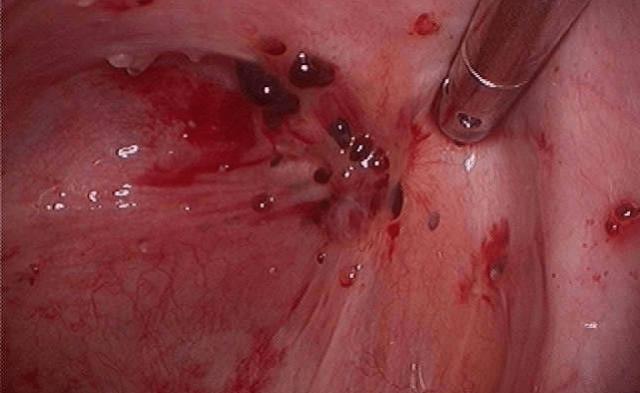 Слизистая матки с единичными очагами эндометриоза