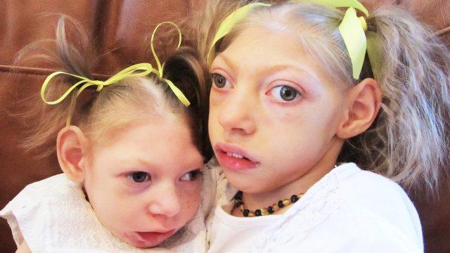 Две девочки с микроцефалией