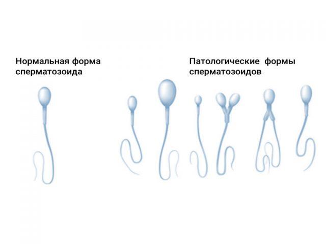 Морфология сперматозоидов наглядно