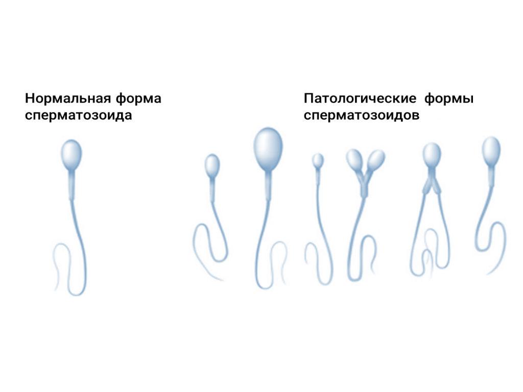 low-sperm-counts-after-vas-reversal