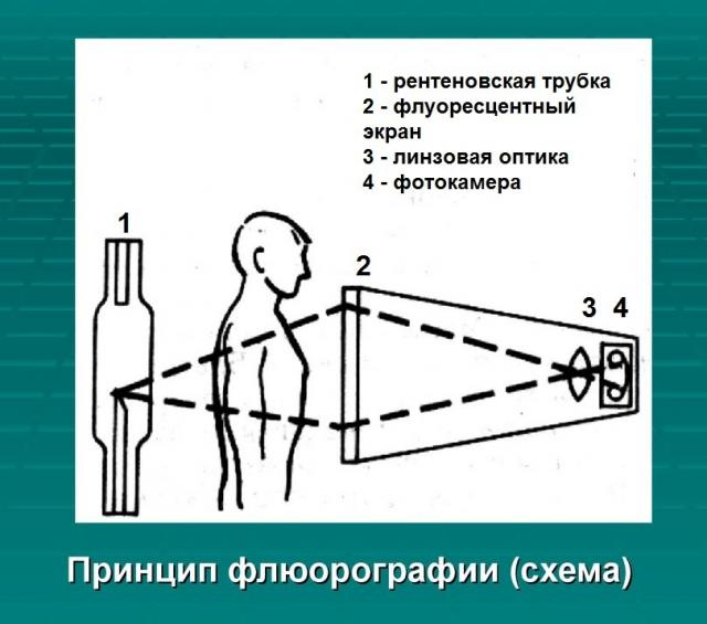 Схематическое изображение принципа флюорографии
