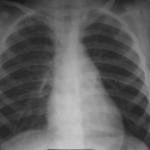 Нормальное состояние органов грудной клетки