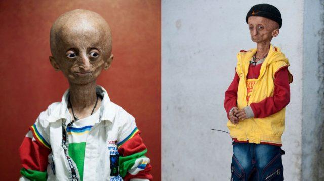 Пятнадцатилетний индиец, больной прогерией