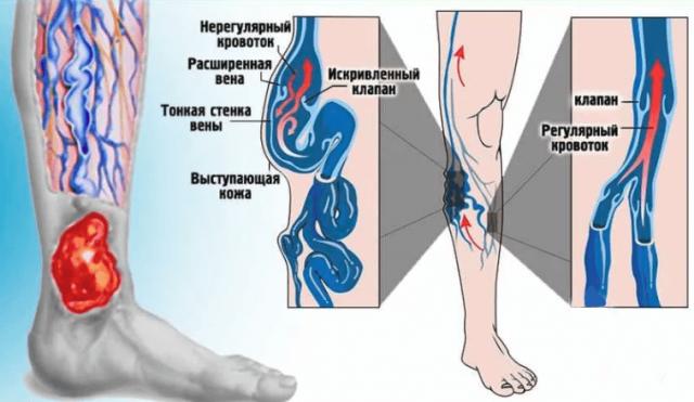 Изображения функционирования здоровой вены и вены с венозной недостаточностью