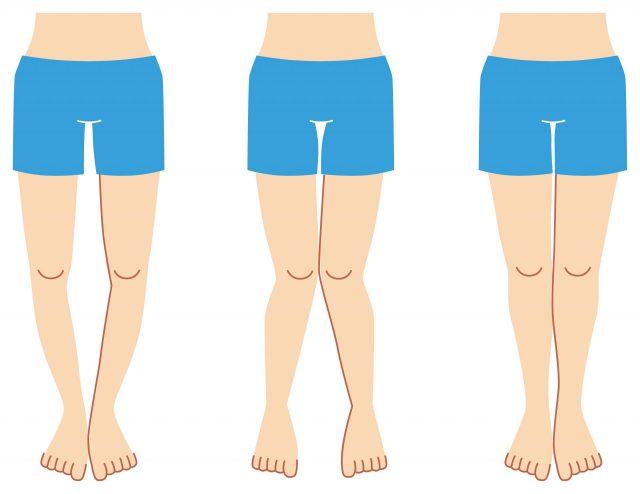 о-образно и х-образно искривлённые ноги