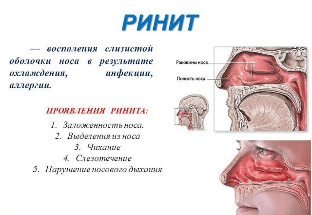 Рисунок воспалённых полостей носа при рините, указание причин и симптомов заболевания