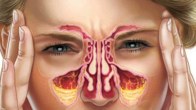 Изображение внутренней структуры придаточных пазух носа, заполненных гноем