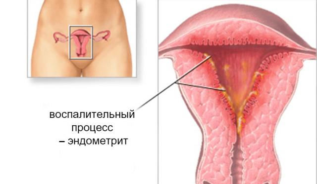 Матка с эндометритом