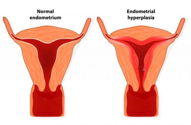 Нормальная матка и матка с гиперплазией