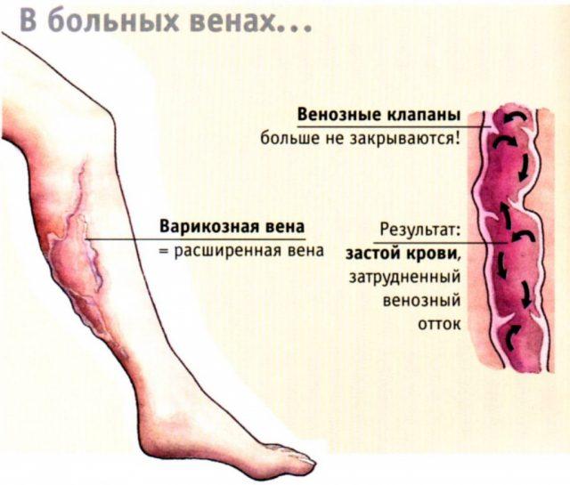 Изображение на рисунке расширенной вены и внутреннего её состояния в разрезе