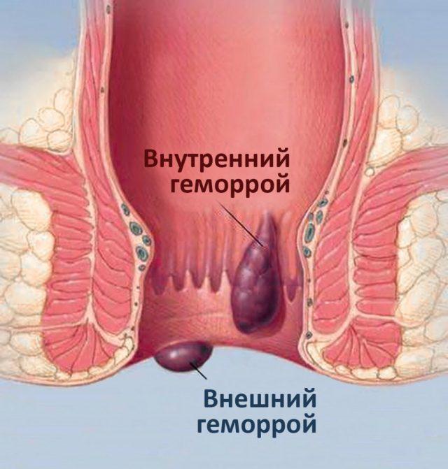 Рисунок в разрезе заднего прохода с воспалёнными геморроидальными узлами