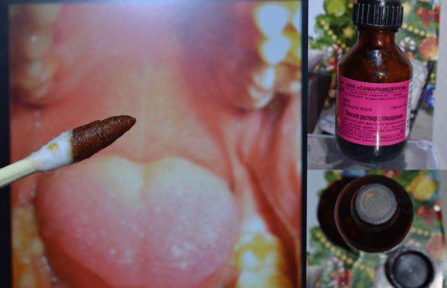 Ватной палочкой, обработанной в Люголе, собираются наносить средство на слизистую горла