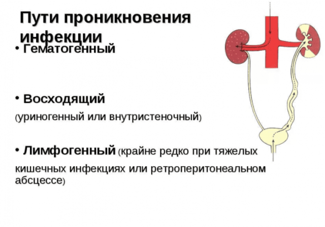 Пути проникновения инфекции в почку при пиелонефрите