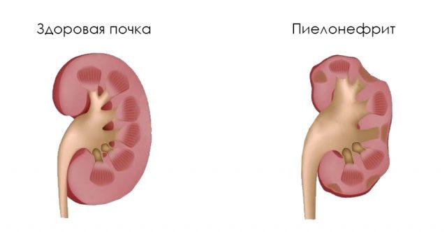 Изменения почки при воспалении