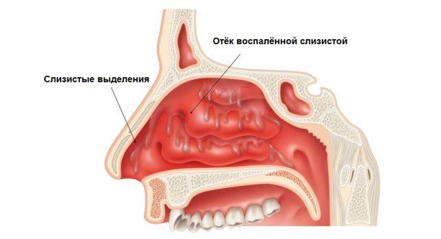 Изображение в разрезе воспалительного процесса в носовой полости