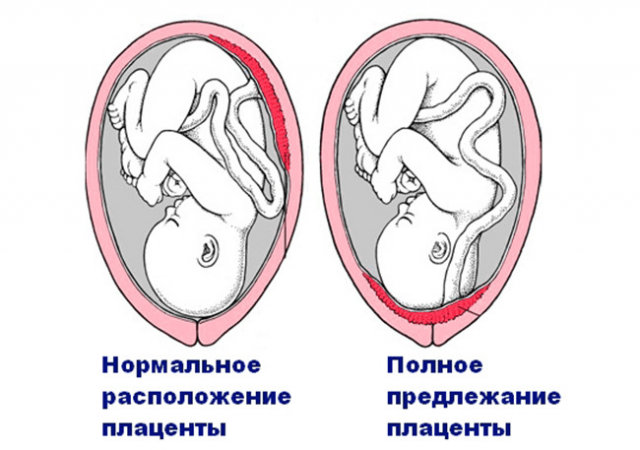 Виды предлежания плаценты