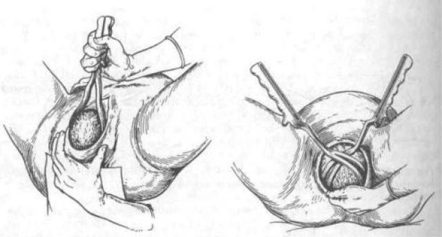 Использование акушерских щипцов