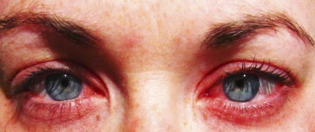 Вид глаз с аллергическим конъюнктивитом