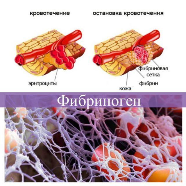 остановка кровотечения фибриногеном на схеме