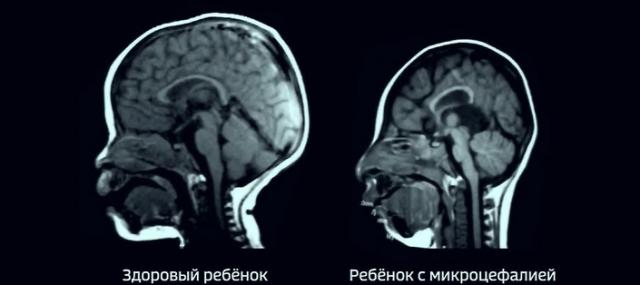 Голова здорового ребёнка и ребёнка с микроцефалией