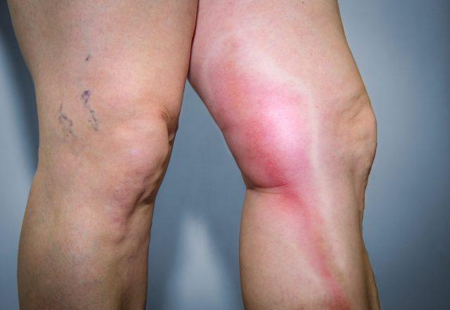 ноги с тромбозом у женщины