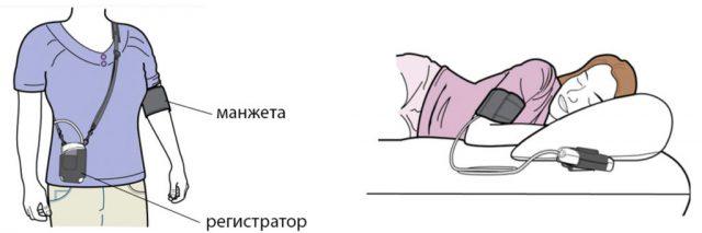 Закрепление аппарата для суточного мониторинга артериального давления