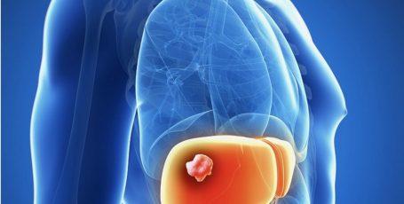 Гемангиома печени: причины, симптомы и методы лечения
