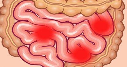 Еюнит: причины, симптомы и лечение заболевания у взрослых