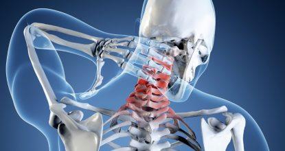 Миелопатия шейного отдела позвоночника — симптомы и лечение