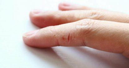 Причины и лечение трещин на коже пальцев рук