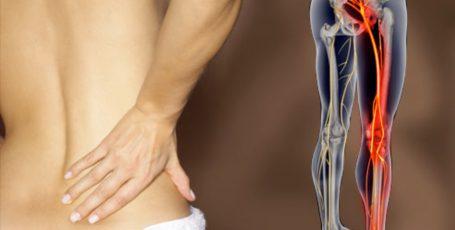 Ишиас: причины, симптомы и лечение болезни