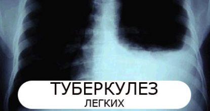 Туберкулез легких: симптомы и первые признаки у взрослых
