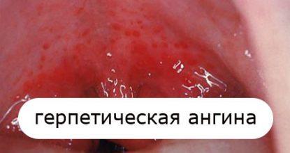 Герпесная ангина у детей и взрослых: симптомы и лечение, фото
