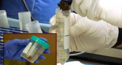 Анализ кала на скрытую кровь: подготовка, сдача, расшифровка результатов