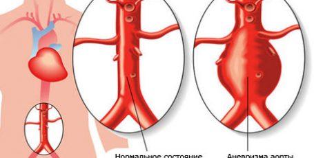 Аневризма аорты: симптомы, диагностика, лечение, прогноз и осложнения аорты