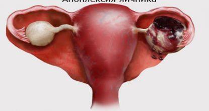 Апоплексия яичника: симптомы, лечение и последствия