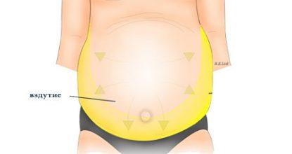 Асцит брюшной полости: причины, лечение, прогноз