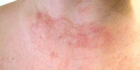 Атопический дерматит: причины, стадии, симптомы и лечение