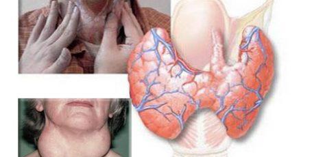 Аутоиммунный тиреоидит щитовидной железы: симптомы и лечение, эндонорм
