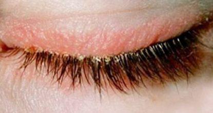 Блефарит: симптомы и лечение, прогноз