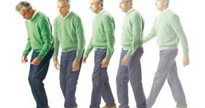 Болезнь Паркинсона: симптомы и признаки, лечение, прогноз жизни