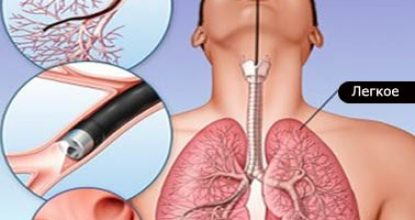 Бронхоскопия легких — что это? Показания и подготовка к анализу, осложнения